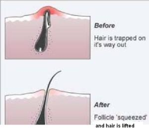 hair ingrown