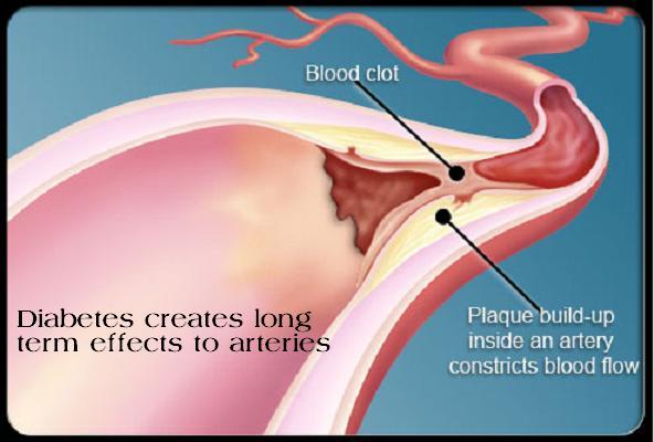 artery effect