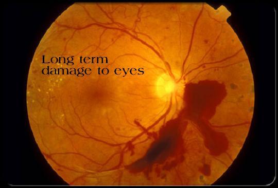 eye damage